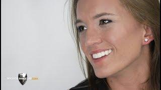 The Future of Dental Veneers  - No Cosmetic Dentist Needed!
