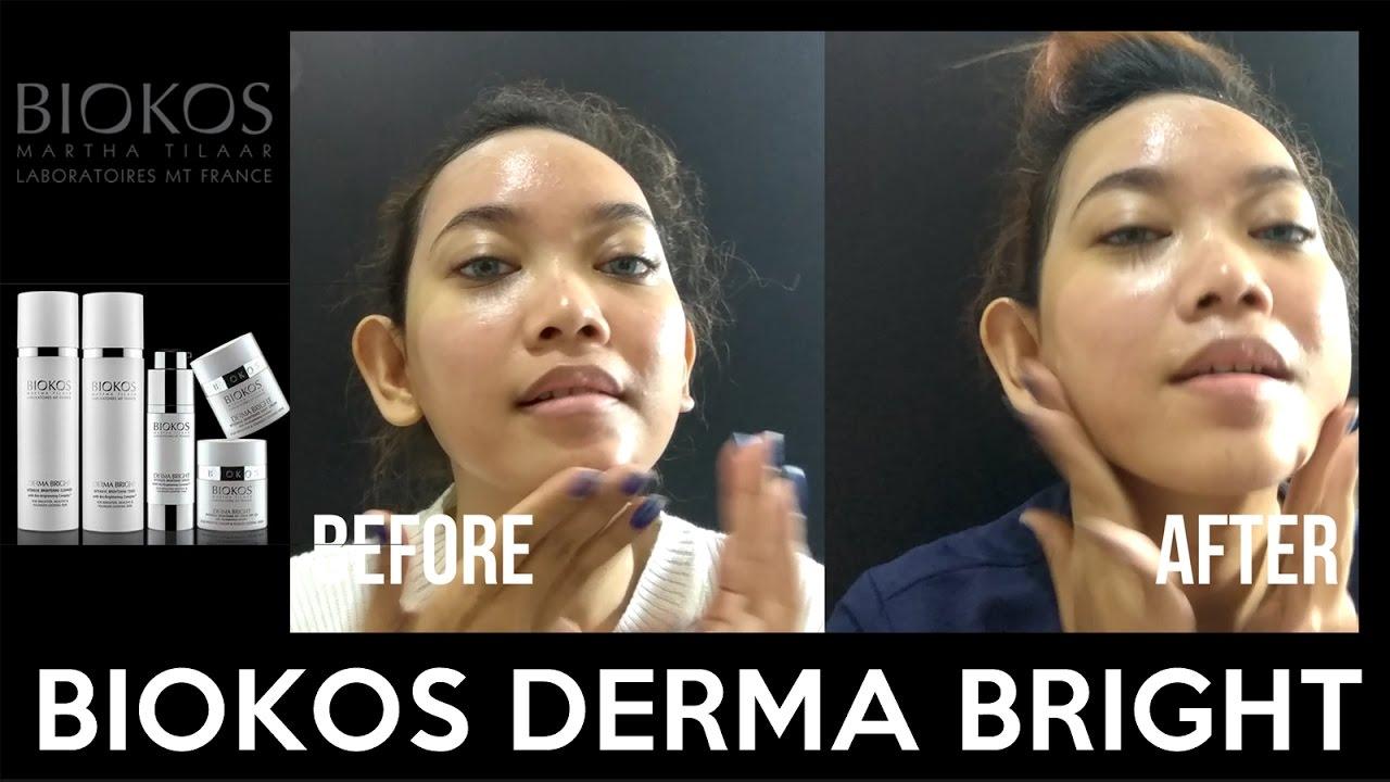 Biokos Derma Bright Intensive Brightening Day Cream Spf 25 Judith Face2face Moisturizer