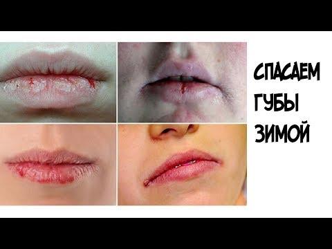 Спасаем губы от трещин и шелушения зимой//Крем скорая помощь