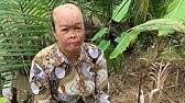 Chị Võ thị thùy Linh là mẹ ruột của Bé yến Nhi ! 2 mẹ con đều bị tạt axit..