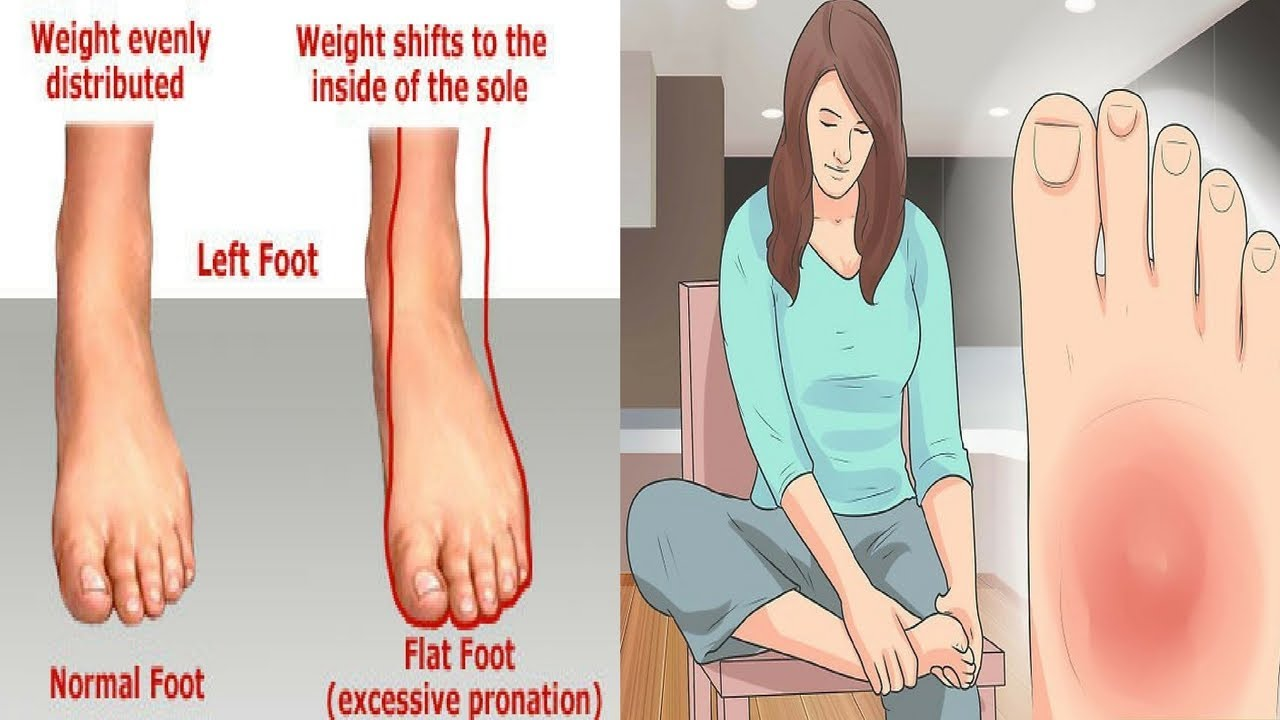 Stress Fracture Symptoms How To Speed Up Recovery Youtube