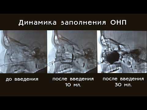 Гайморит.  Введение лекарственного препарата в пазухи при лечении гайморита. ЯМИК -процедура.