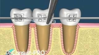 Посмотрите, как работает ортодонтия! Очень наглядное видео. ДЕНТиС. Стоматология. г.Краснодар