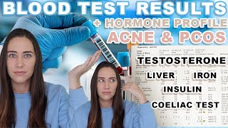 (IT'S MY LIVER!) Blood Test Results + Hormone Test for Hormonal Acne & PCOS screenshot 5