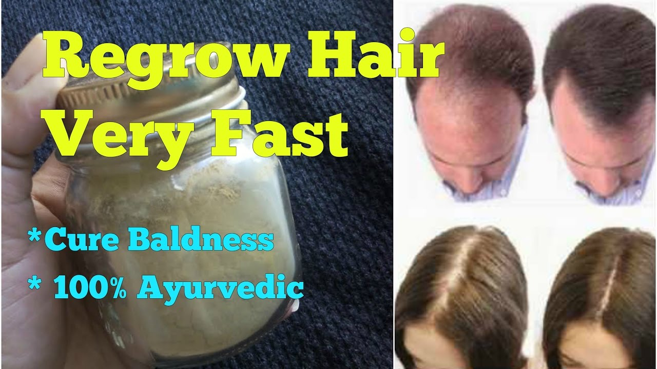 Natural ways to regrow hair for men