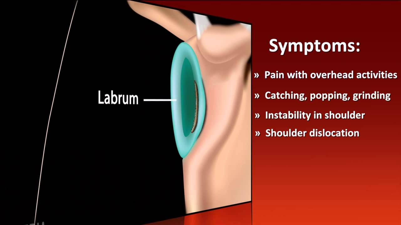 USC Athletics Injury Report - Shoulder Labral Tear - YouTube