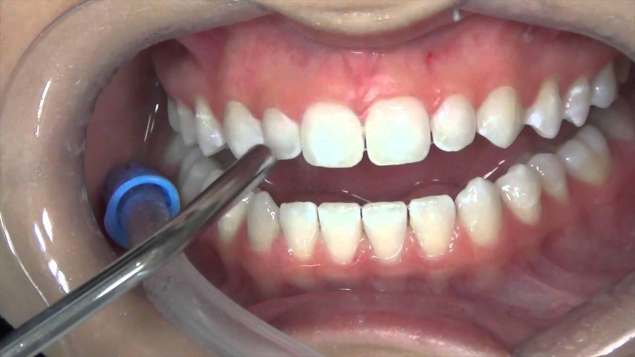 7d05290009 Restaurações com Lentes de contato dentais e Fragmentos cerâmicos