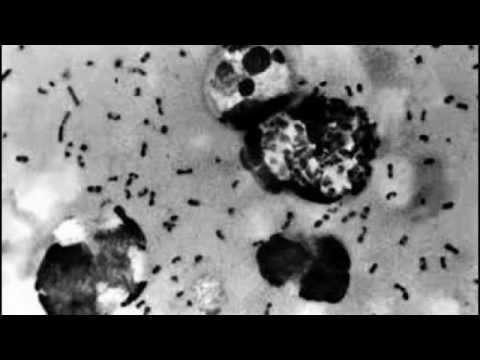 The Plague: Black Death Found In Arizona Near Flagstaff