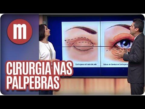 Mulheres - Saúde: Cirurgia Nas Pálpebras (29/03/16)