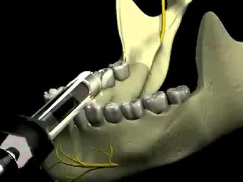 Проводна анестезия на N  Alveolaris Inferior   VBOX7