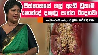පිත්තාශයේ ගල් ඇති වුනාම කොන්දේ දකුණු පැත්ත රිදෙනවා | Piyum Vila | 14-06-2019 | Siyatha TV Thumbnail