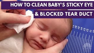 How to clean a baby's sticky eye and blocked tear duct