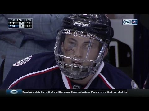 Zach Werenski Took Puck To Face Got Stitches And Returned In Same Game