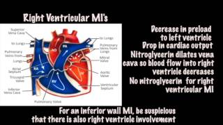 Tintinalli's Emergency Medicine, 8th edition video - ECG  Right Ventricular MI