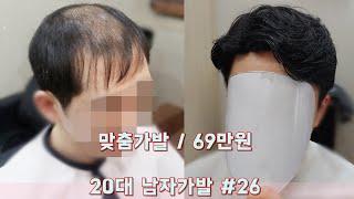 20대 남자가발으로 탈모 부작용 대인기피증 극복!!