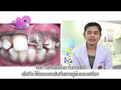 รายการเพื่อฟันที่คุณรัก เรื่อง ฟันแตก ฟันหัก ทำอย่างไรดี ตอนที่ 2