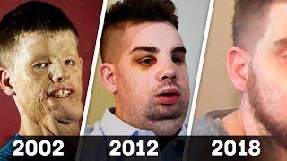 ВСЕ ИЗДЕВАЛИСЬ НАД НИМ, НО В 2012 ГОДУ ОН БЫЛ ПРООПЕРИРОВАН. 5 ЛЕТ СПУСТЯ ЕГО НИКТО НЕ УЗНАЛ!