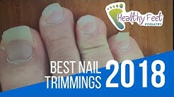 Best Nail Trimmings 2018