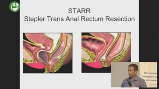пятницкий А Г - Степлерные технологии в лечении ректоцеле