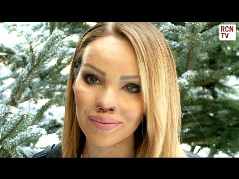 Katie Piper Interview - The Katie Piper Foundation & Body Confidence
