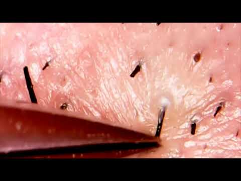 Удаление волосков под микроскопом