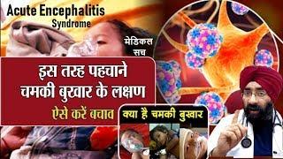 ऐसे फ़ैल रहा है चमकी बुखार Bihar CHAMKI FEVER Encephalitis Medical Truth Dr Education Hindi