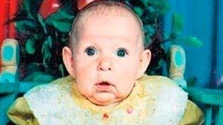 تخلى عنها والديها بعد ولادتها بوجه كالعجوز | ولكن بعد 21 عام حدث شيء صدم الجميع !!