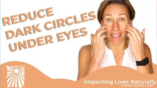 How To Reduce Dark Circles Under Eyes #UmoyoLife 036