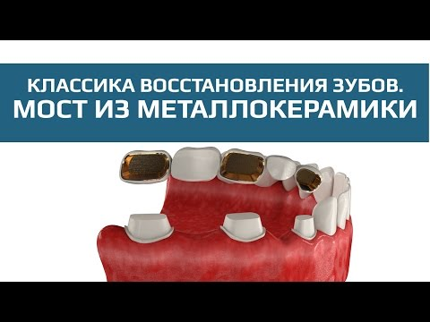 Препарирование зубов для их протезирования