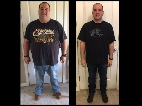 Gastric Sleeve Before and After 170 lbs in 9 Months