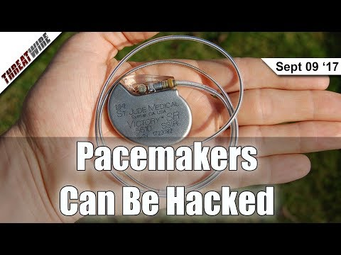 Half A Million Pacemakers Could Be Hacked...