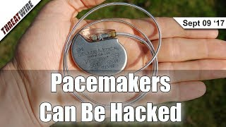 Half A Million Pacemakers Could Be Hacked - Threat Wire