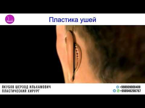 Пластика ушей, коррекция лопоухости в Ташкенте, пластический хирург Др Якубов Шерзод