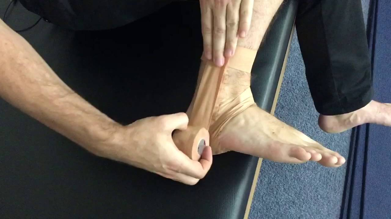 Self ankle strapping for a lateral ankle sprain or ankle instability ...
