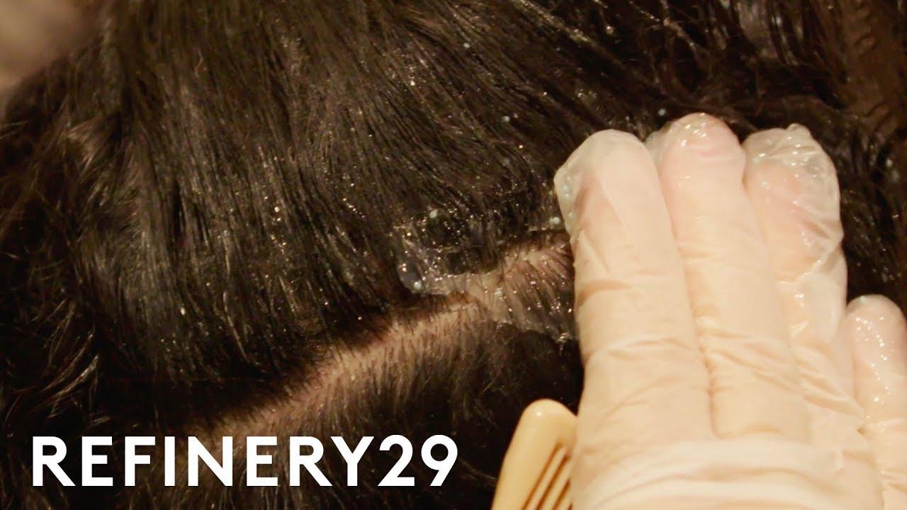 I Got A Scalp Treatment For Dandruff   Macro Beauty