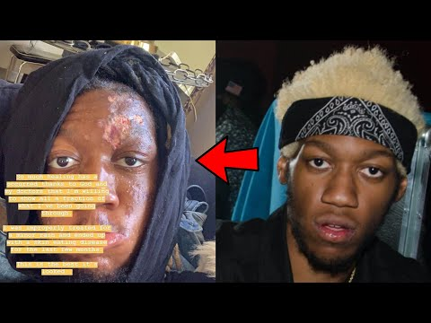 Shay Diddy - OG Maco Reveals He's Suffering From Skin-Eating Disease