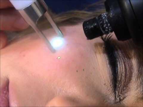 Fox - Tratamiento de lesiones vasculares Síndrome Rondu Osler