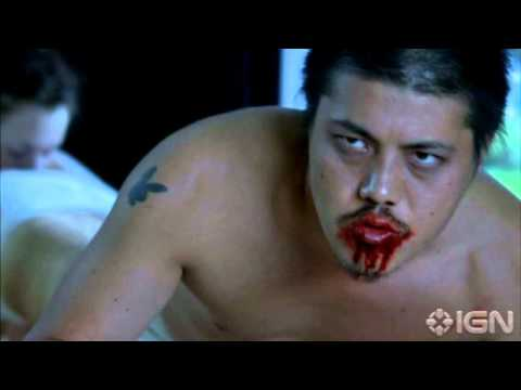 RECENSIONE FILM: The Human Centipede (First Sequence)