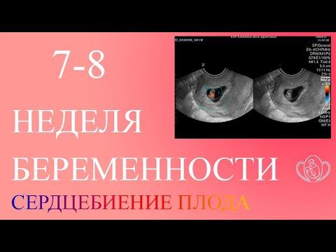 На 6 неделе беременности сердцебиение