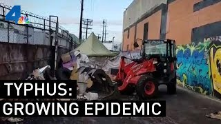 Typhus Epidemic Worsens in Los Angeles | NBCLA
