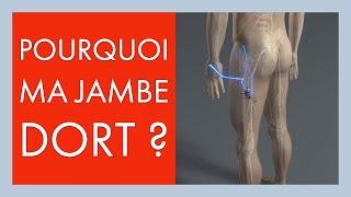 Paresthésie, perte de sensibilité, fourmillements jambe ou pied: pourquoi ma jambe dort ?