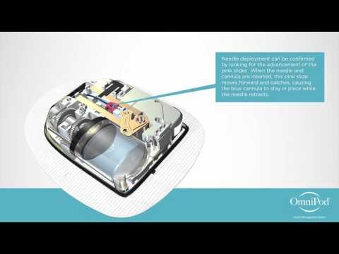 omnipod---technology-animation