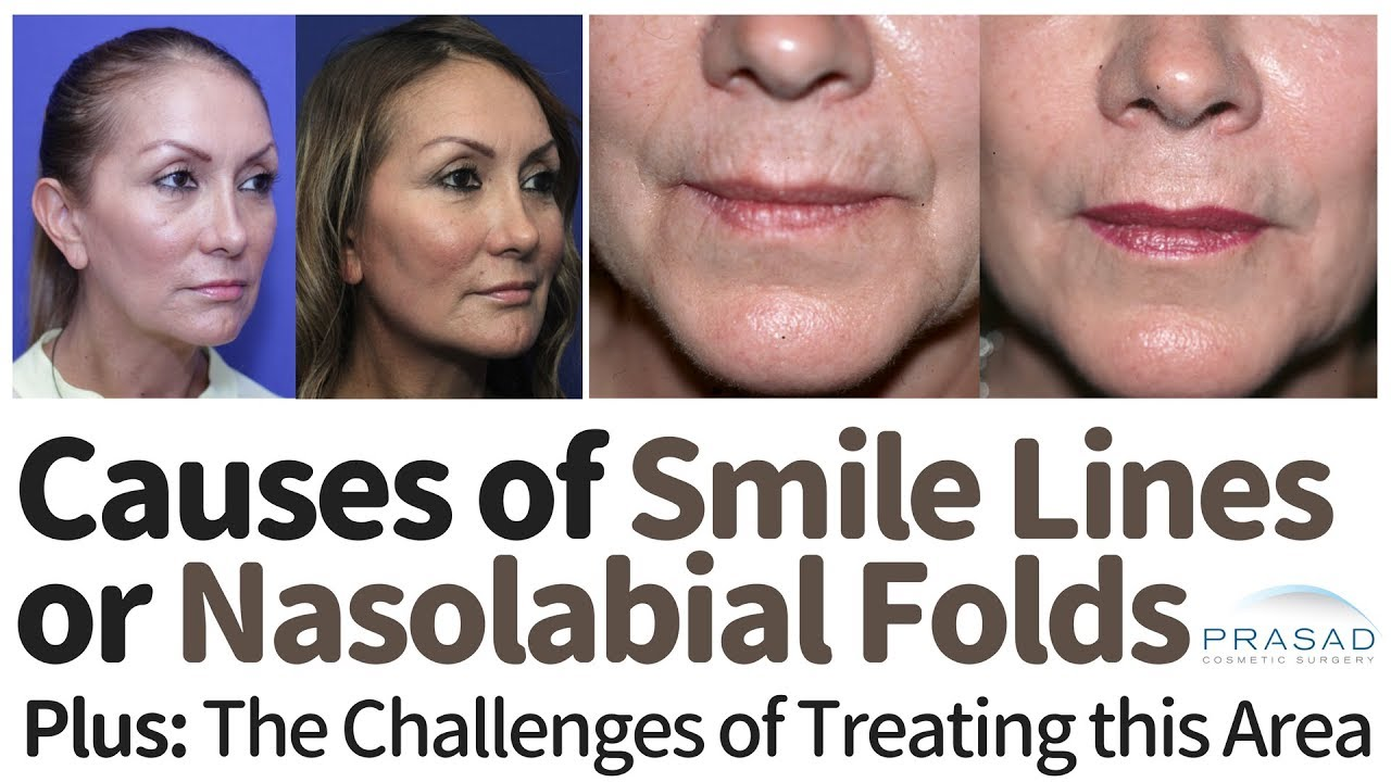 Causes of nasolabial folds and ways to get rid of them 22