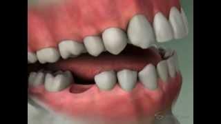 River Road Dental: Dental Bridge Diagnosis