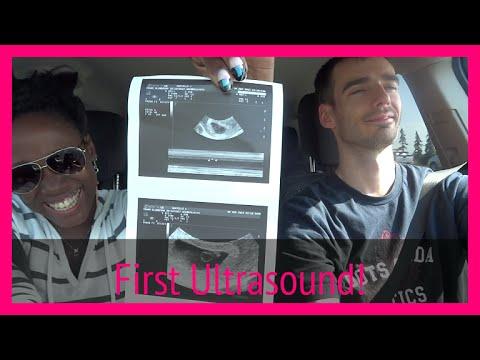 dating ultrasound toronto