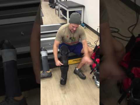Below-Knee Amputation (BKA) - Ski Leg (refined)
