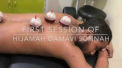 Treatment of Internal bleeding piles by Hijamah/Cupping Therapy