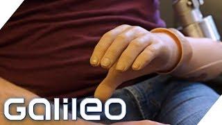 Prothesen-Revolution: Diese Hand bietet Fingerspitzengefühl | Galileo | ProSieben