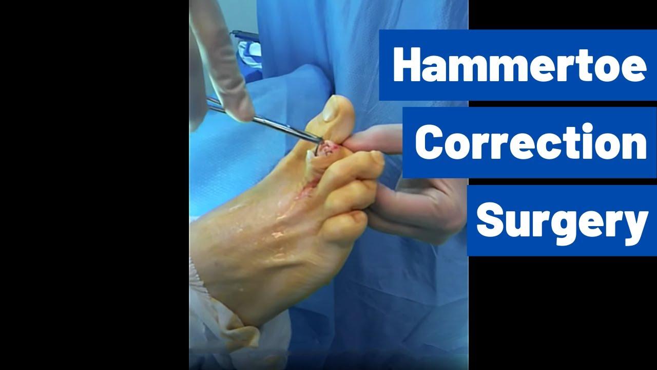 Hammer toe surgery - Houston Foot Surgeon - Dr Robert J Moore III ...