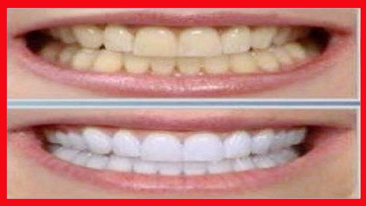 Como Clarear Os Dentes Em 3 Minutos Com Casca De Banana